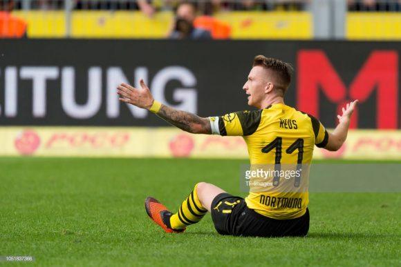 A Alemanha chega bastante desfalcada para encarar a Holanda em Amsterdam, sendo que dentre os principais deles, está o meia Marco Reus, do Borussia Dortmund.